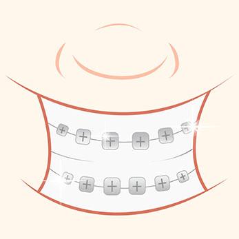 Orthodontist vs. Orthodentist