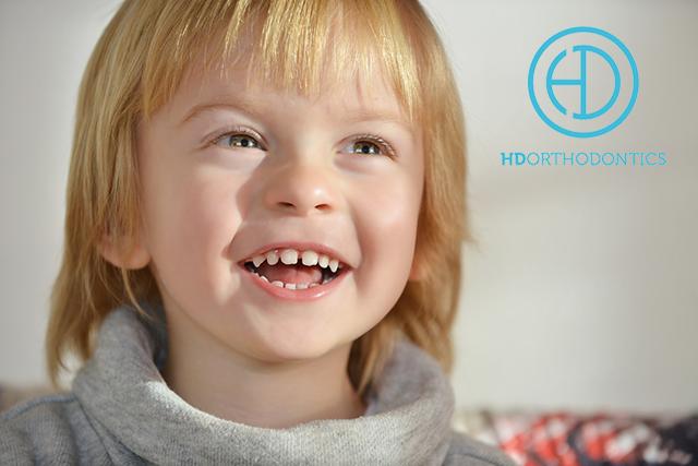 Early (Phase I) Orthodontic Treatment Explained