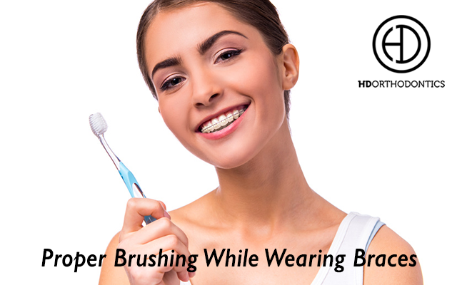 Proper Brushing While Wearing Braces