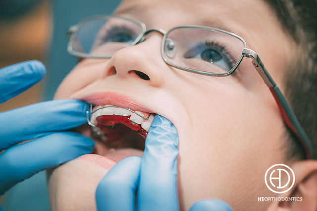 Why Does My Child Need to See an Orthodontist?
