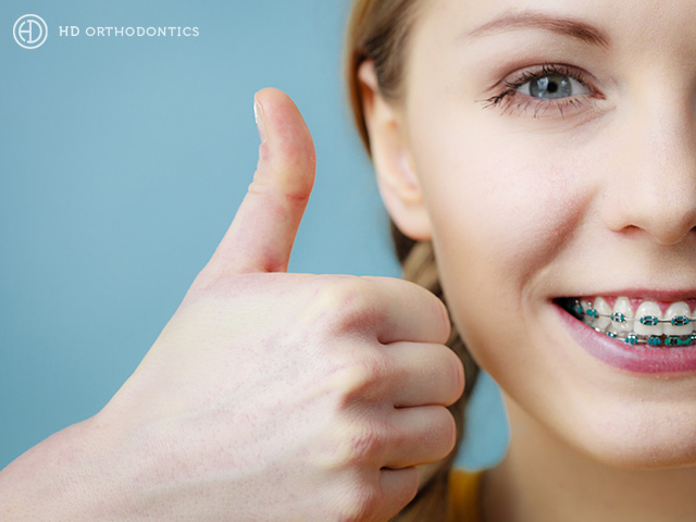 What is the Best Orthodontic Treatment for Your Lifestyle?