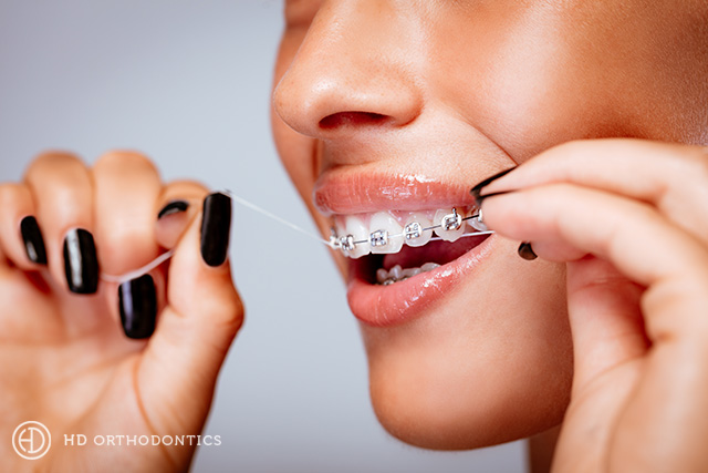 Avoiding Tooth Decay While in Braces