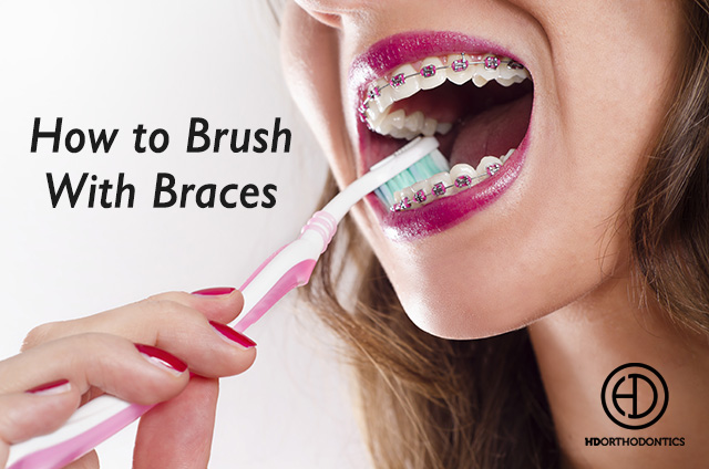 The Dos and Don'ts of Brushing with Braces